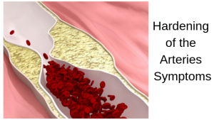 Hardening of the Arteries Symptoms