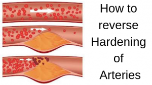 How to reverse Hardening of Arteries?