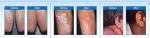What is the best psoriasis treatment at home?