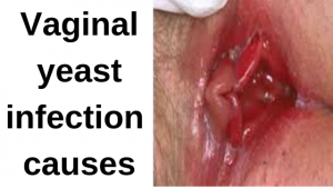 Vaginal yeast infection causes