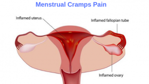 Menstrual Cramps Pain