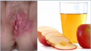 Apple Cider Vinegar Bath for Yeast Infection