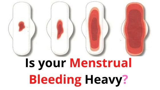 Is your Menstrual Bleeding Heavy_
