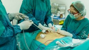Yeast Infection after Laparoscopy