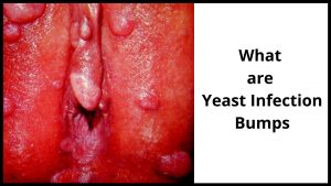 What are yeast infection bumps