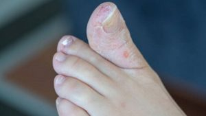 Can Antibiotics Cause Fungal Skin infections