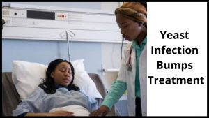 Yeast Infection Bumps Treatment